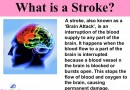 What Is Stroke