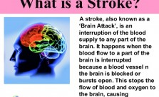 What Is Stroke