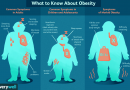 OBESITY -Meaning, causes and symptoms